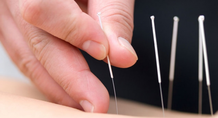 Acupuncture works for pain and more