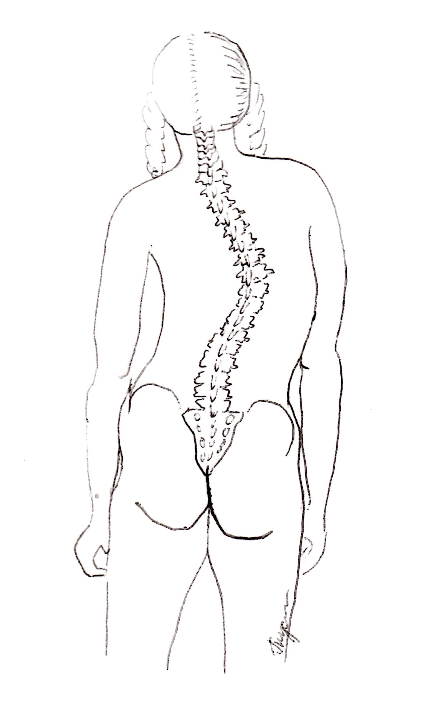 Scoliosis - more common than you think