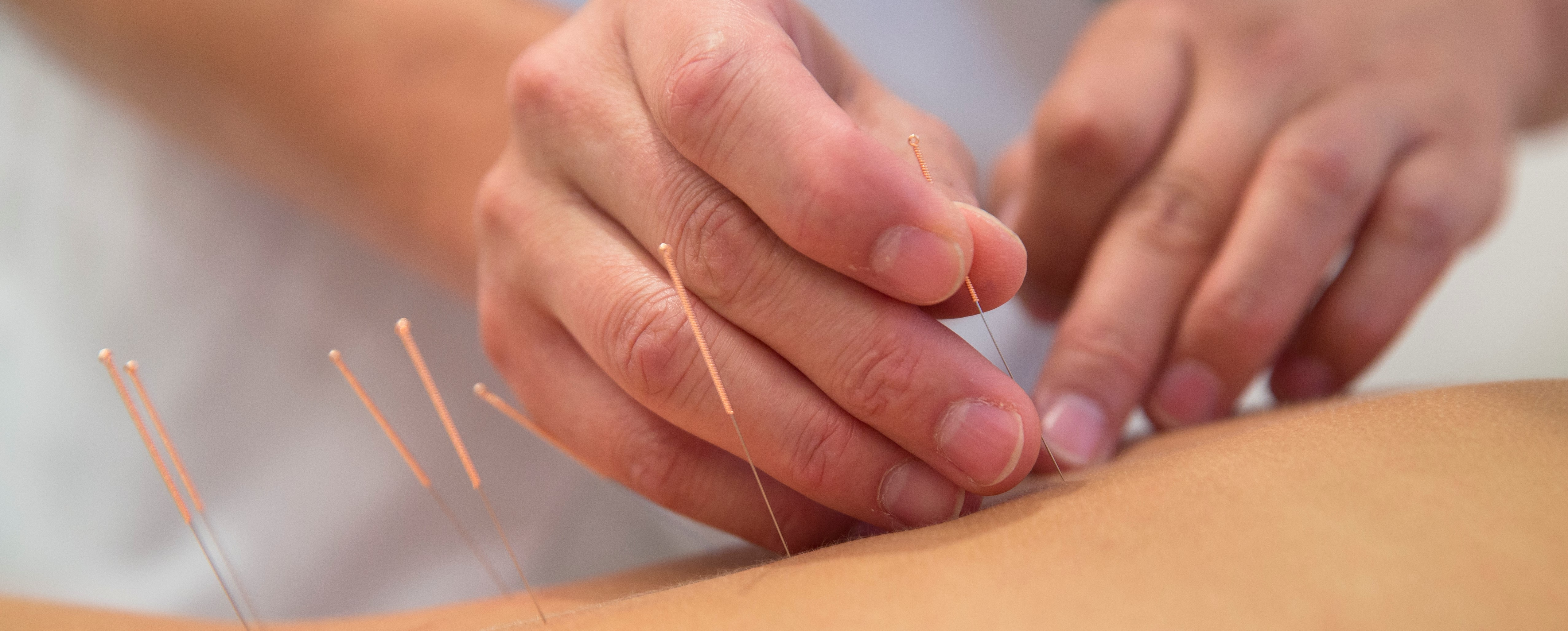 Landmark summary in Journal of Pain deems referral for acupuncture for chronic pain a reasonable option